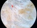 Vermiform có phải là một loại giun sán trong gan tụy không? Tác hại & giải pháp khi phát hiện